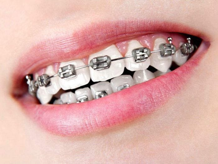 Silver Black Braces - Teeth Braces Ideas | Brackets dentales ...