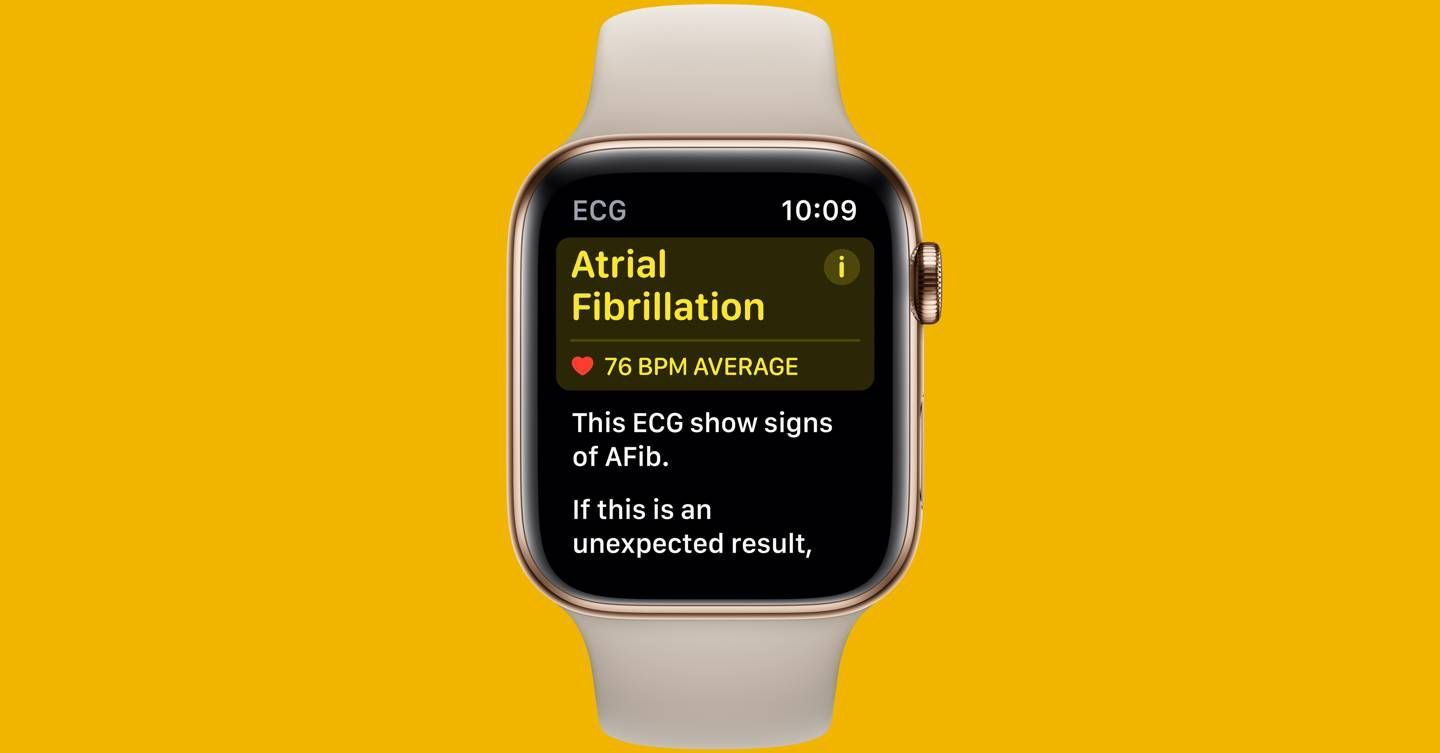 You can finally use the apple watchs ecg tracker in the
