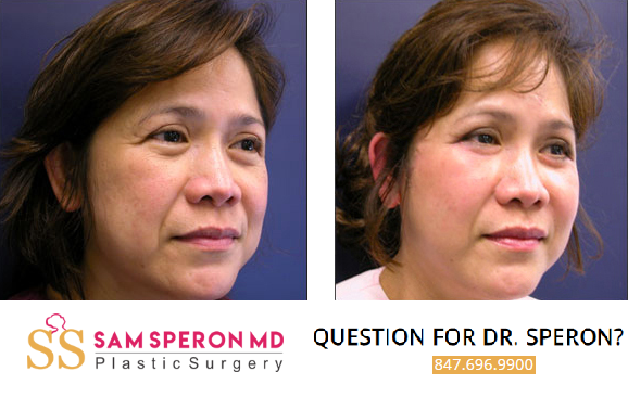 Best facial plastic surgeons in chicago pic 151