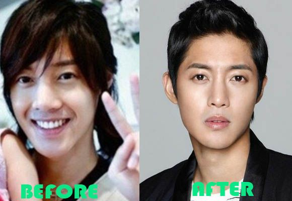Wedding dress kim hyun joong plastic surgery