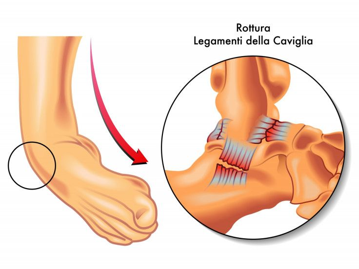 Effective chiropractic care for recurrent ankle sprains