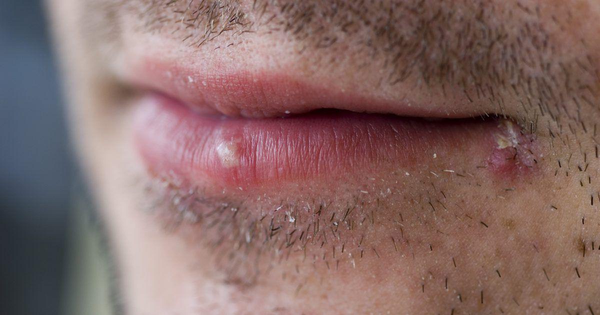 herpes nariz y boca