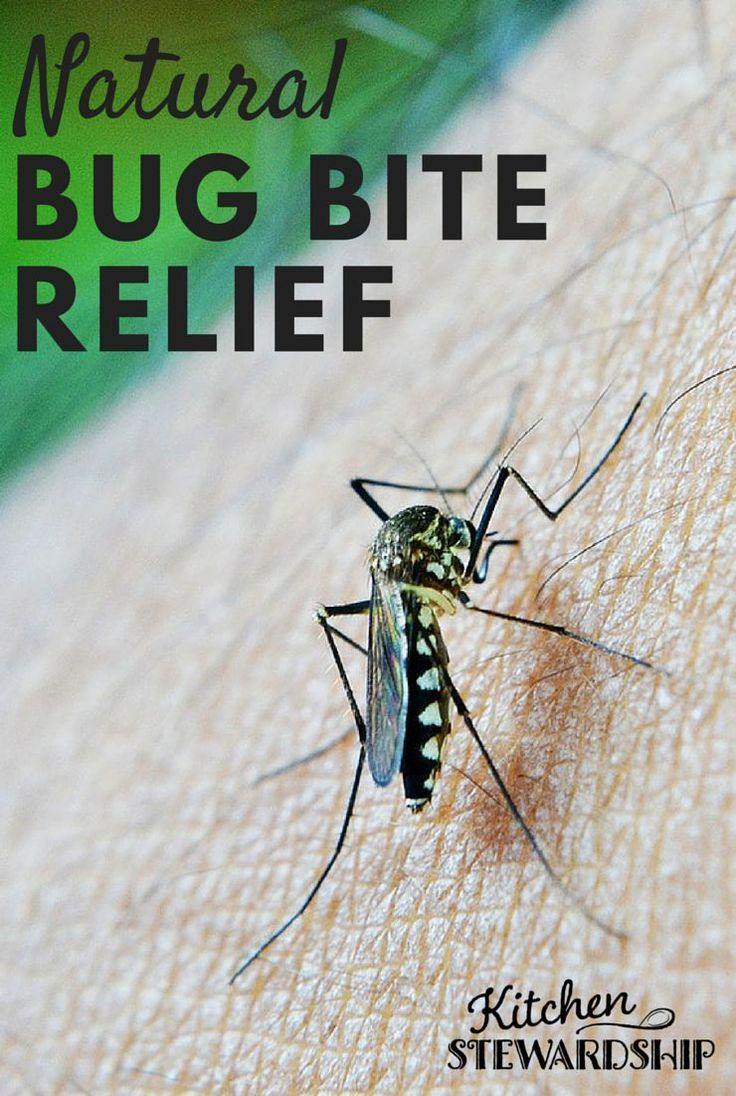 Stop that itch quick with these natural remedies for bug bites of all kinds: mosquitoes, chiggers and more.