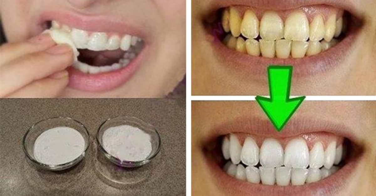 This easy trick helps whiten your teeth in a jiffy.