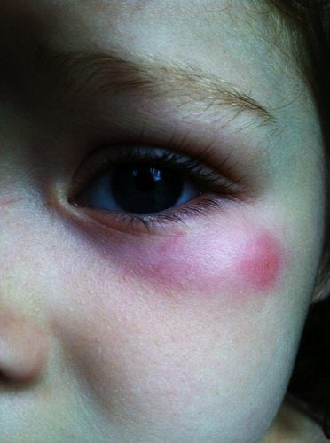Skeeter Syndrome Is An Allergic Reaction Caused By Polypeptides That
