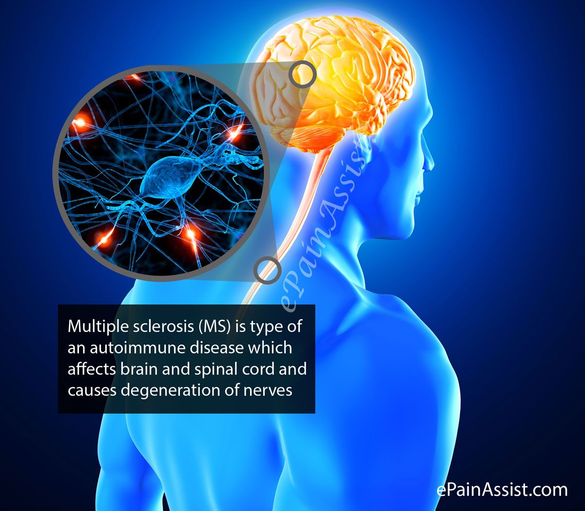 Learn more about Multiple Sclerosis (MS) or Disseminated Sclerosis ...