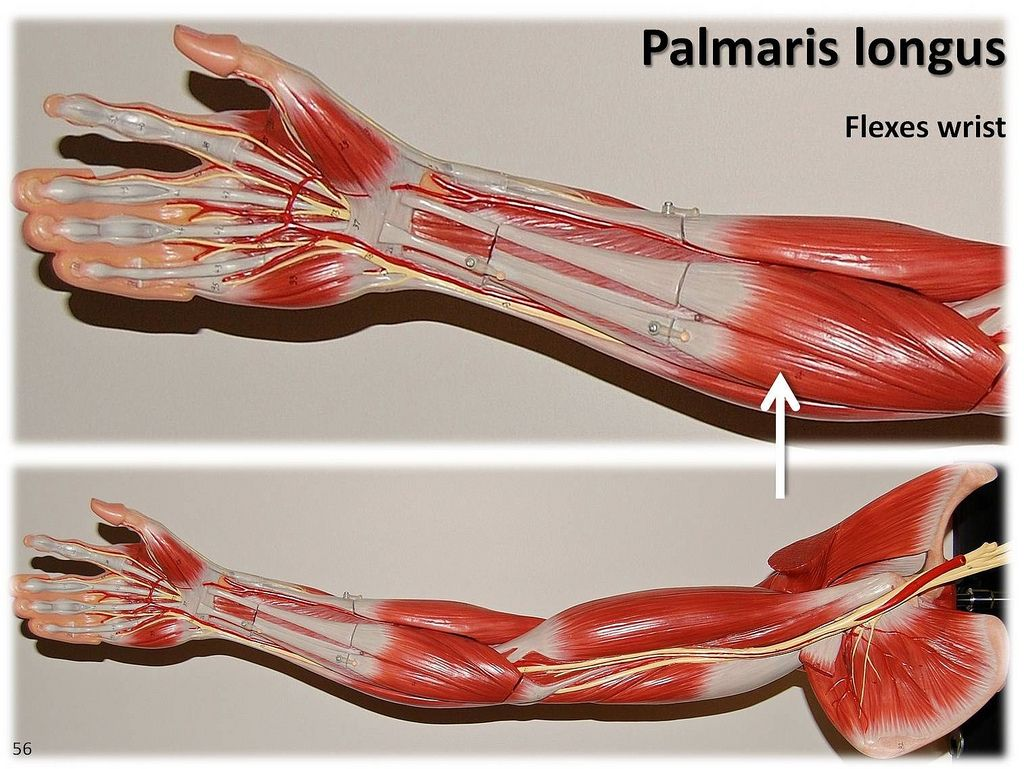 Palmaris longus - Muscles of the Upper Extremity Visual Atlas page ...