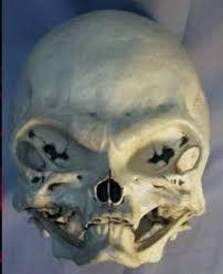 Resultado de imagem para cranios estranhos encontrados