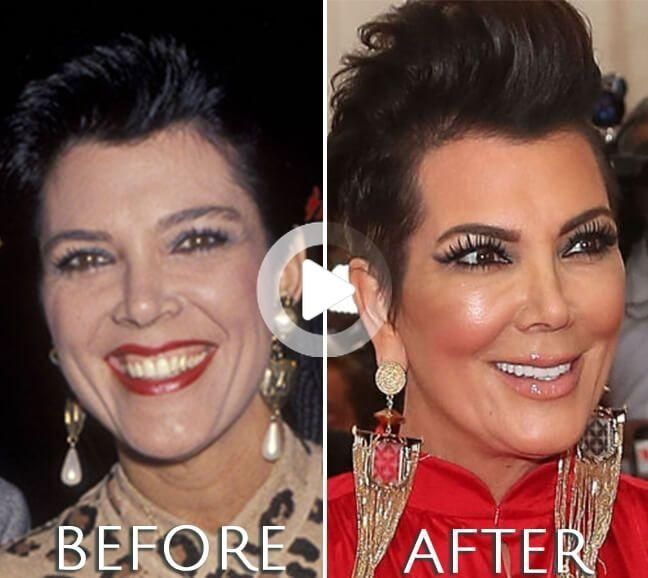 Kris Jenner Plastic Surgery Before & After Photos