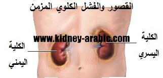 ما هو نظام غذائي صحي لمرضي القصور الكلوي الغذائي مه م جدا بالنسبة إلي كل الإنسان لا سي ما بعض المرضي لأن يمكن أ Kidney Failure Kidney Failure Diet Sool