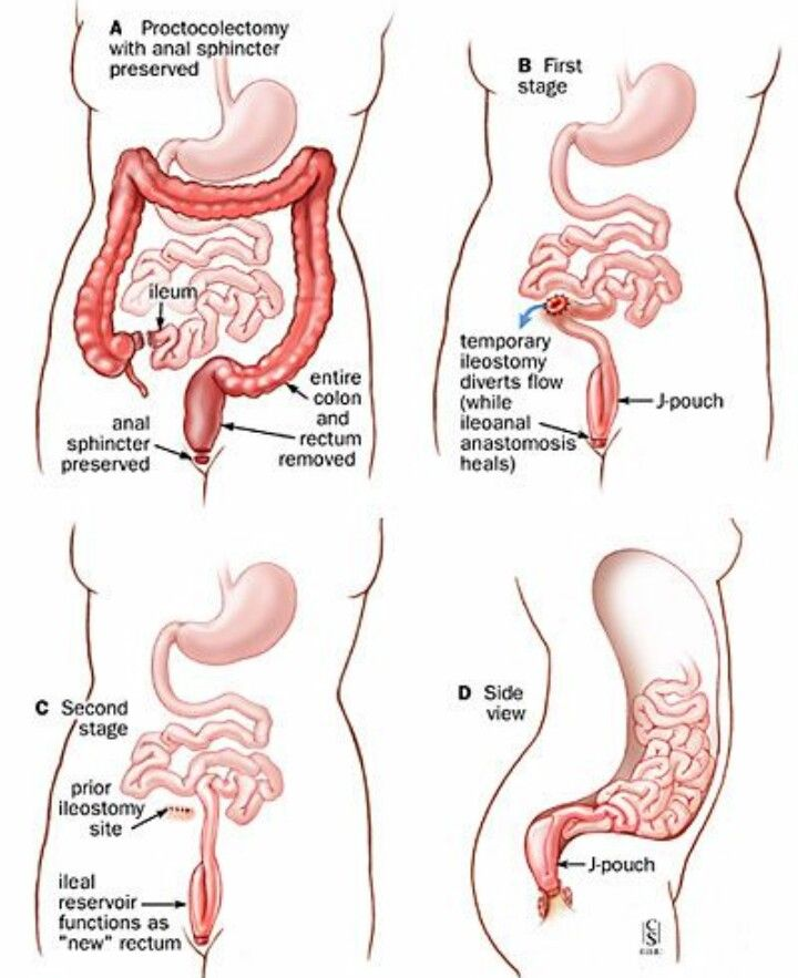 Steps to j-pouch | Ostomy & IBD Life | Pinterest | Pouches and Medical