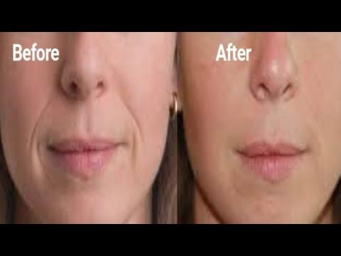 Rapidly Remove Deep Smile Lines Fast Look Younger And With This Wrinkle Remedy Youtube Remove Eye Wrinkles Wrinkle Remedies Smile Wrinkles