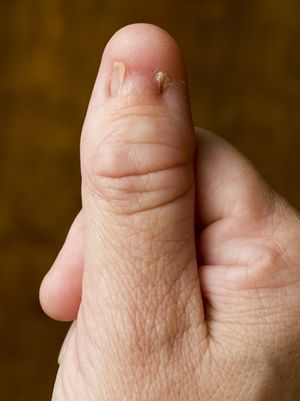 nail patella syndrome Nail patella syndrome (nps) is a rare genetic condition that affects the nails, knees, and other joints treatment of nps focuses on managing symptoms.