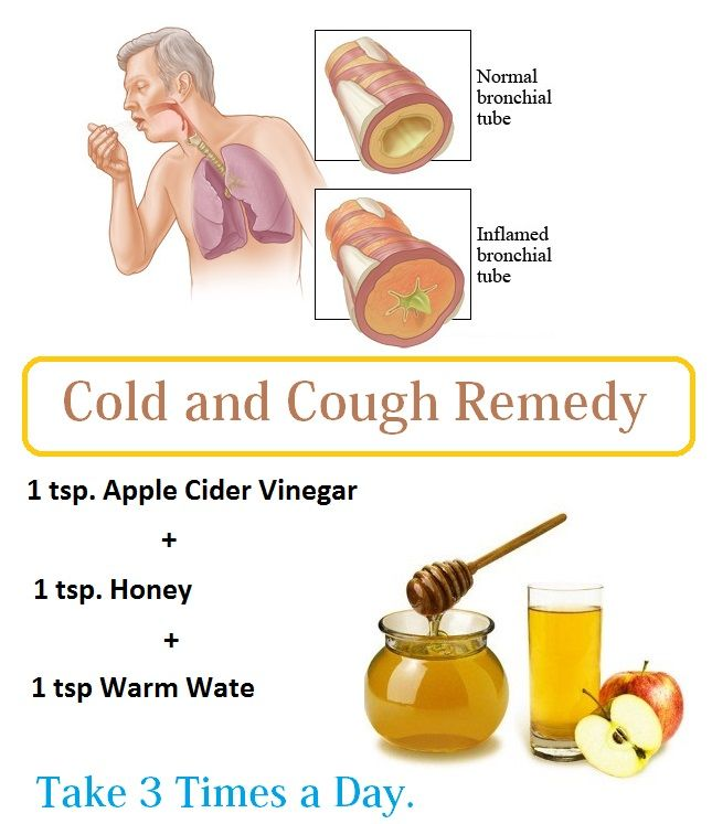 16 Diy Home Remedies For Dry Cough Dry Cough Remedies Cold And