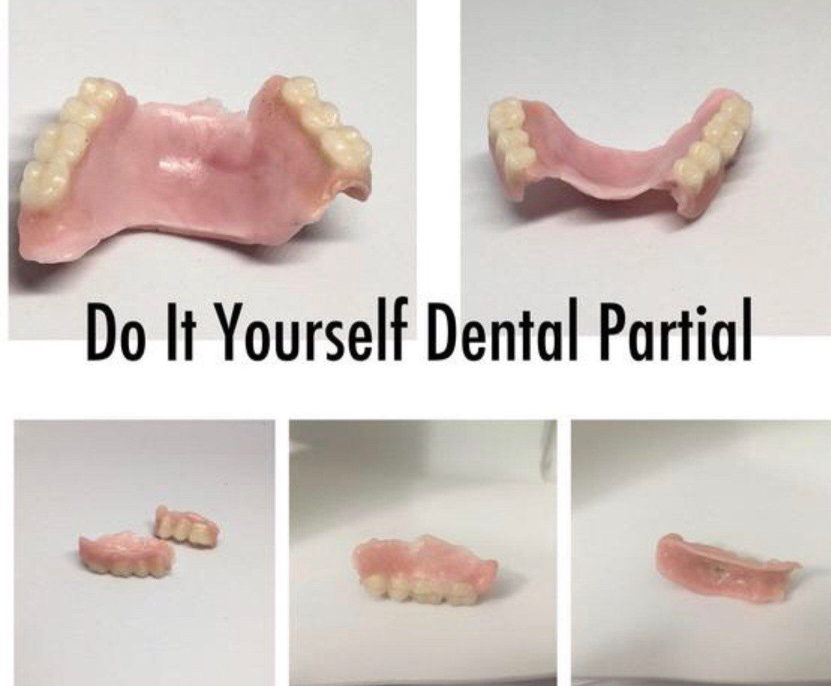 DIY Partial Denture Kit Dental Bridge Flipper Teet