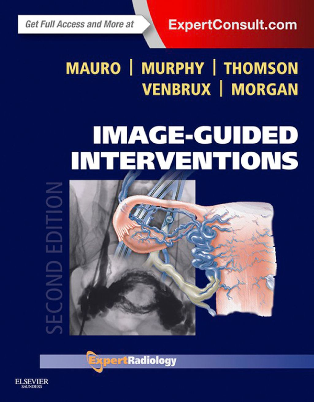 ImageGuided Interventions Expert Radiology Series (eBook
