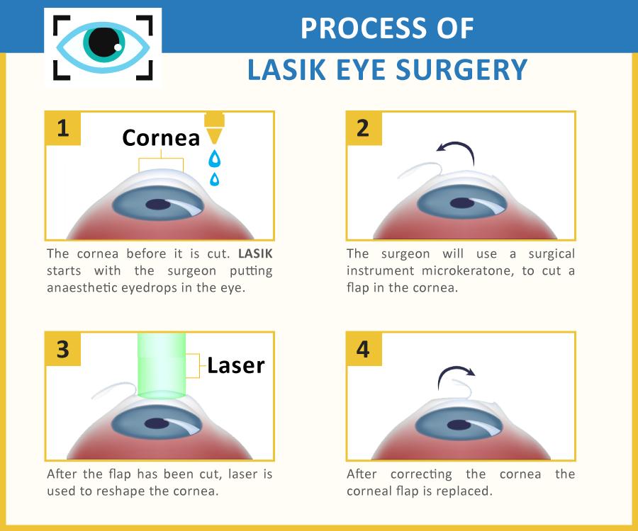 Pin by Maria Nowacky on Eye Surgery Cost | Laser eye ...