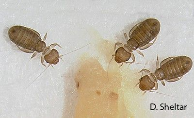 head louse