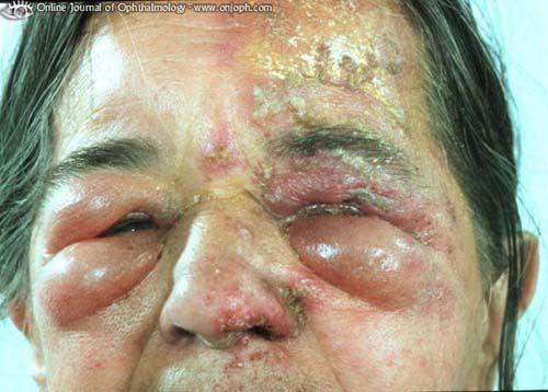 infezioni da herpes