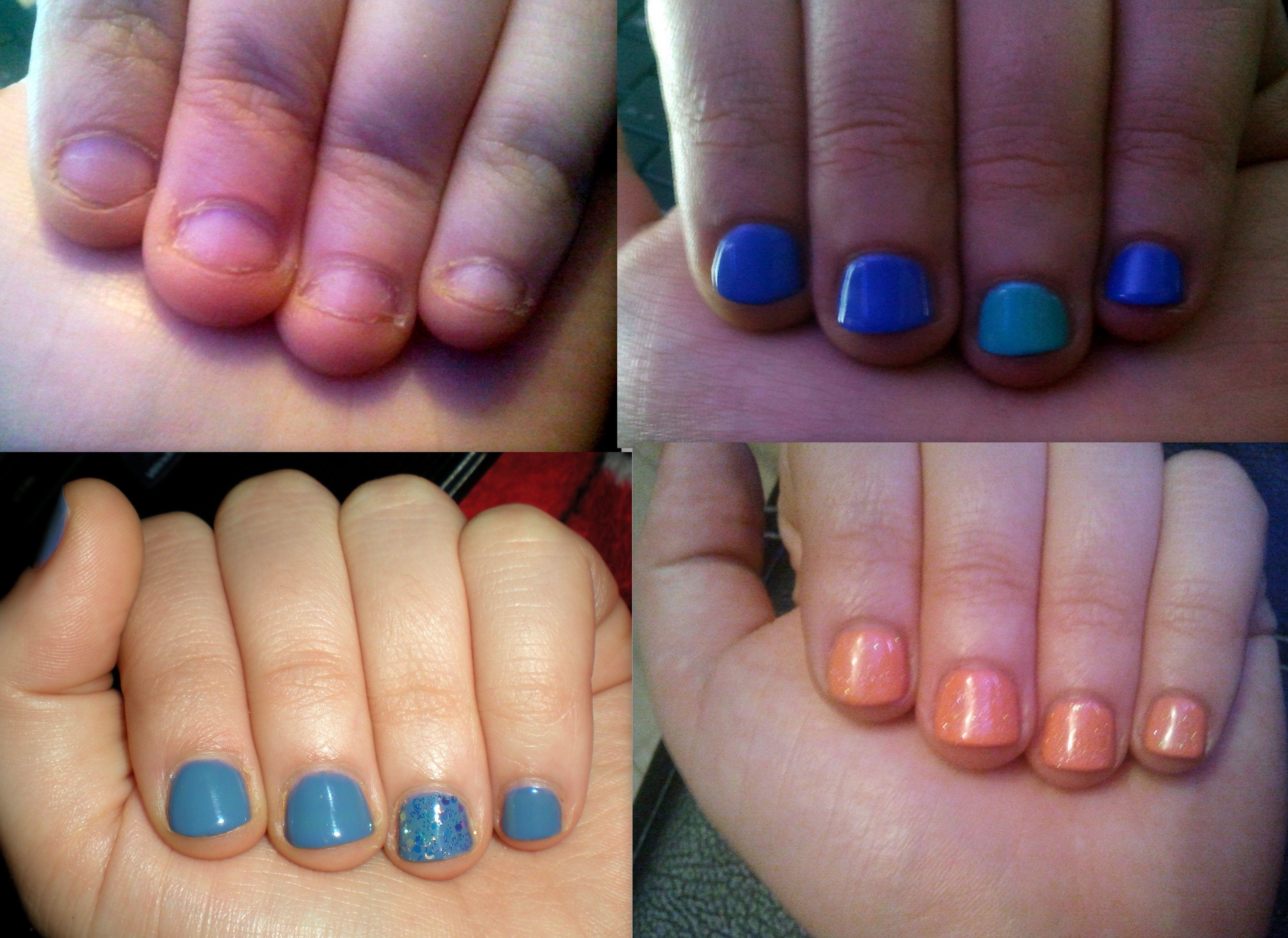 Bitten nails grown using Gelish Gel Polish over 7 weeks | Nail ...