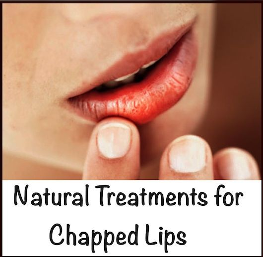 Natural Treatments For Chapped Lips
