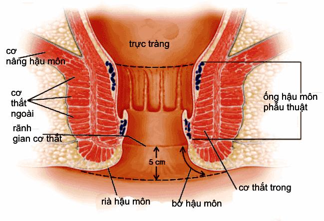 Giải phẫu ống hậu môn và bản chất bệnh trĩ