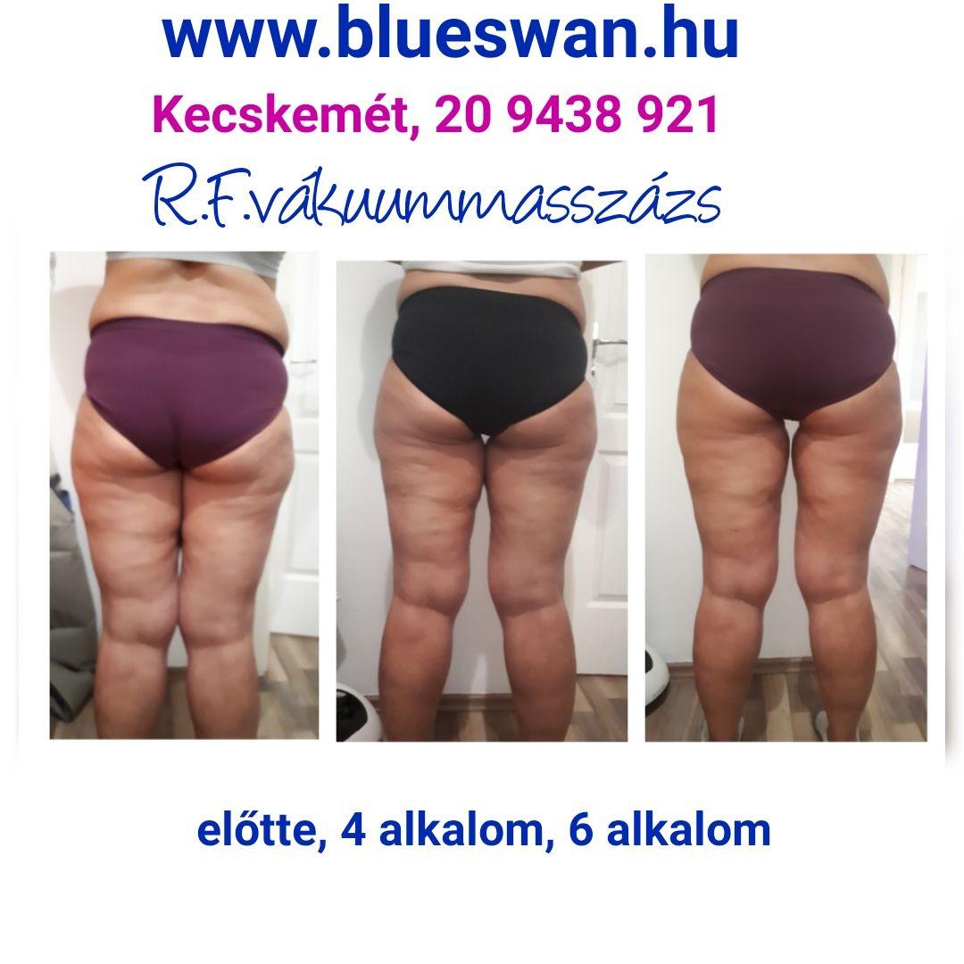 sprintelő zsírvesztés előtte és utána