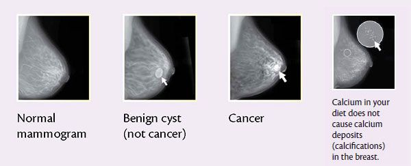 breast cancer treatment by stages guidelines