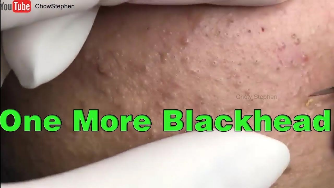 JUST ONE MORE BLACKHEAD - Chow Stephen | CYSTS,SPOTS,N PUSS | Acne