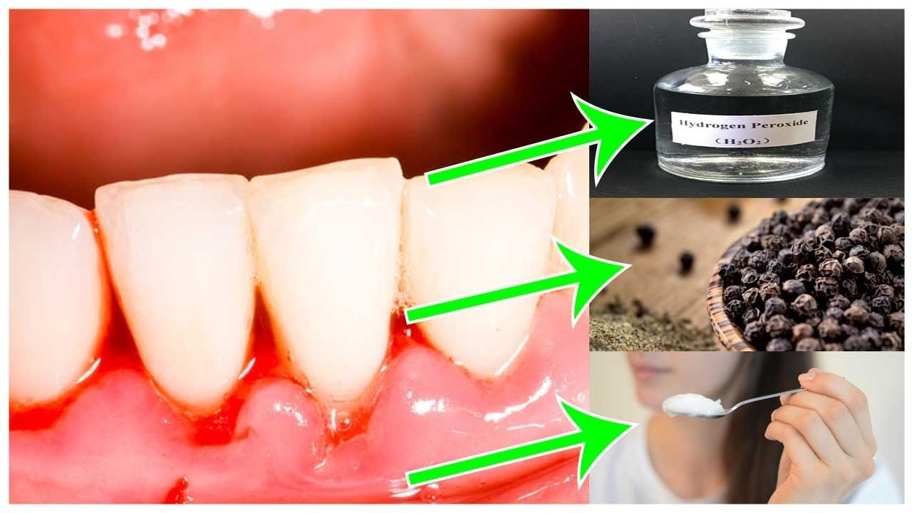 Gum disease treatments at home top 5 home remedies for