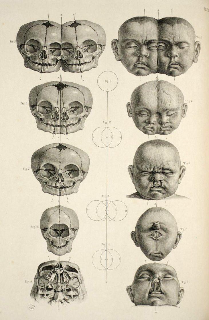 Resultado de imagen para old taxonomy illustration   Anatomía ...