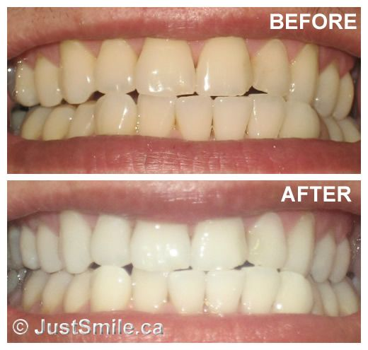 how to get your teeth whiter with baking soda