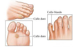 Papiloma en la planta del pie tratamiento casero