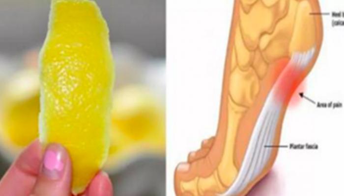 Una Cáscara De Limón Puede Quitar El Dolor De Las Articulaciones Para  Siempre.   Dolor crónico, Remedios, Salud