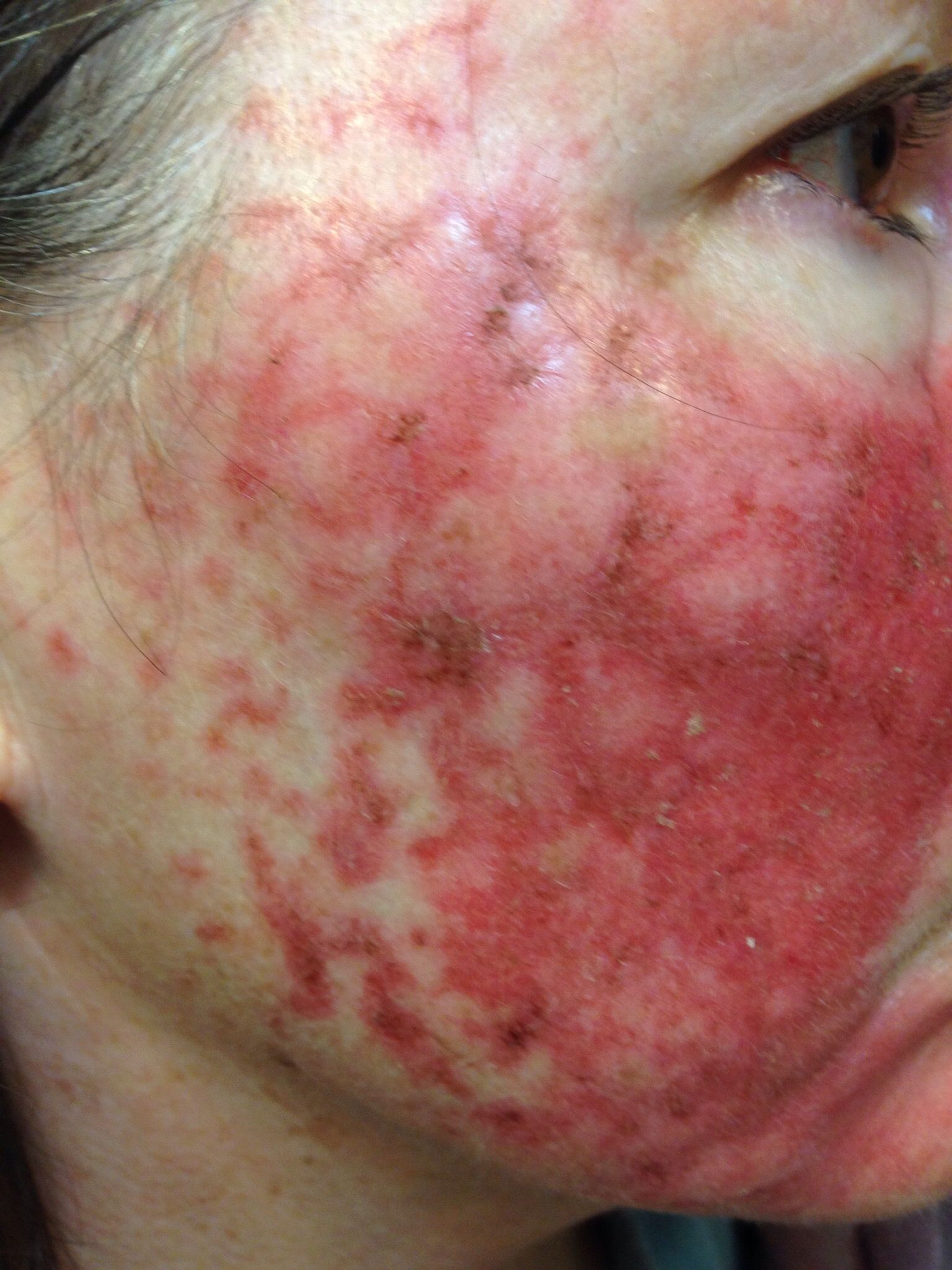 Skin Cancer Treatment Fluorouracil Day 18 19 A Thousand Words