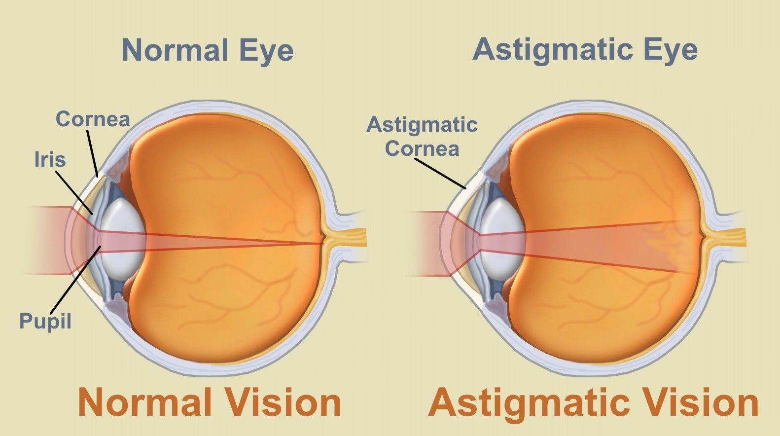 991c28593a3ef What is astigmatism  From the wide array of vision problems which affect  humans, astigmatism is without the doubt the most misunderstood.