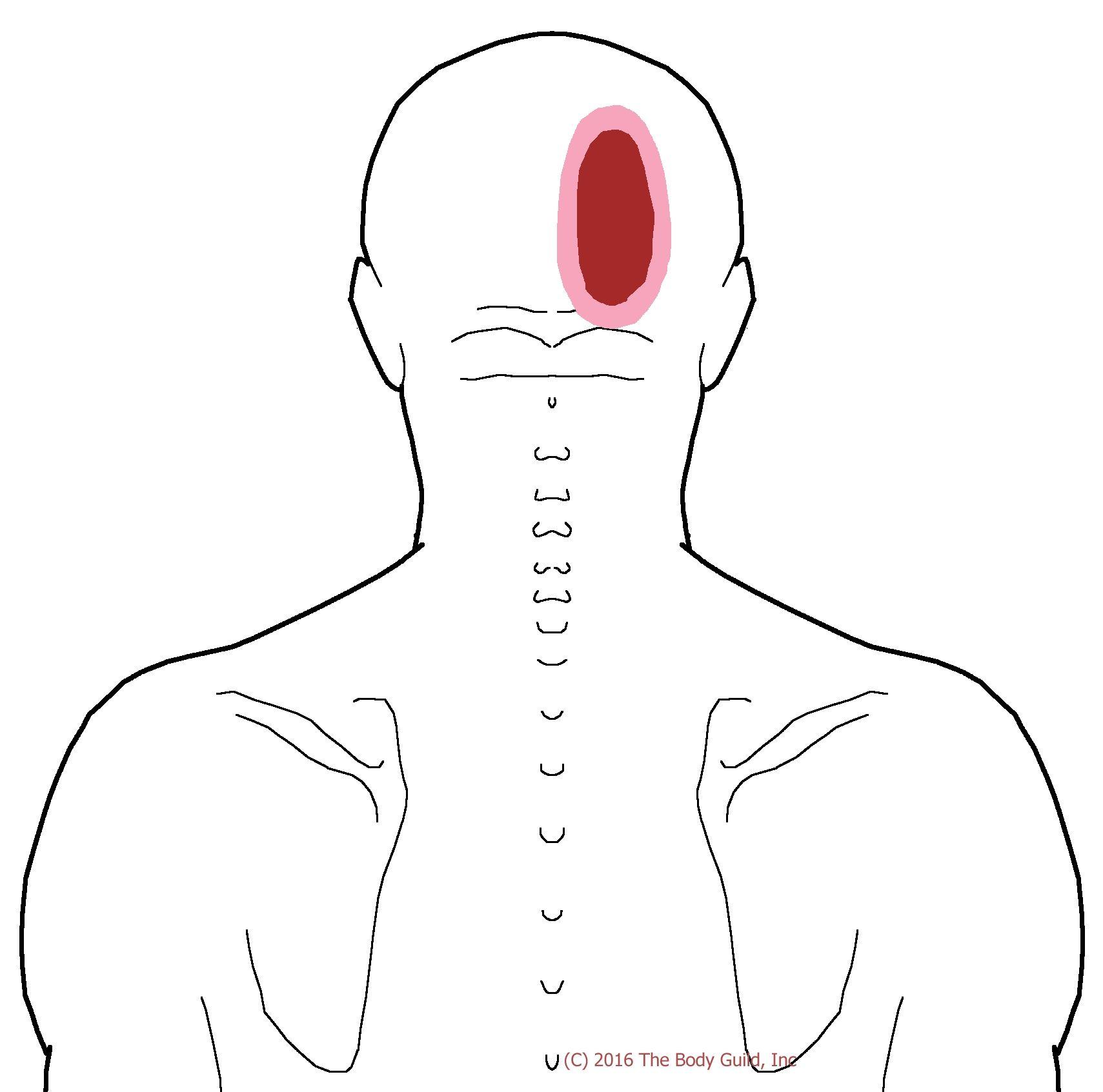 Pin von The Body Guild auf Headache - Trigger Point Pain | Pinterest