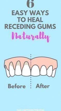 6 Easy Ways to Heal Receding Gums Naturally : 6 Easy Ways to Heal Receding Gums Naturally #gumcare #Easy #Ways #Heal #WhoOralHealthCare #WhatIsOralBGumCareMode #DoOralCare