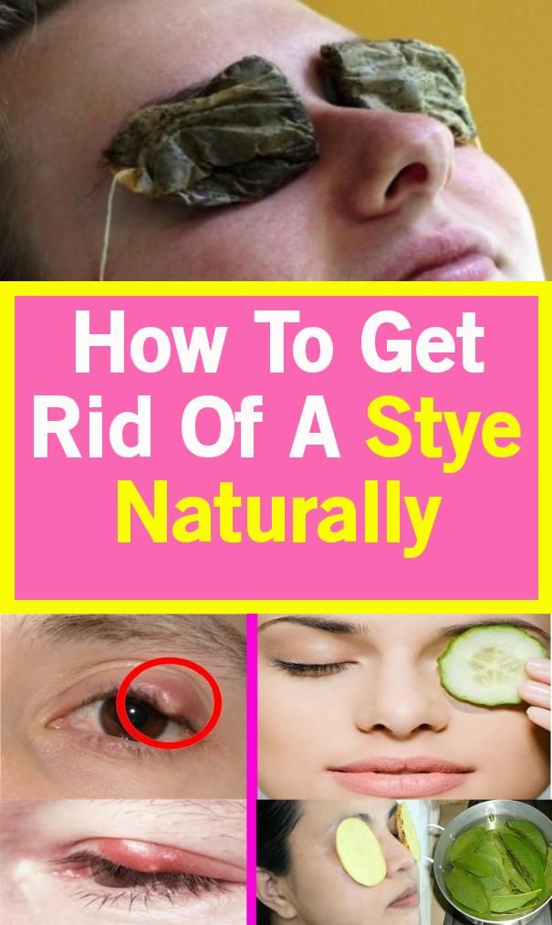 Naturally, How Can We Get Rid Of A Style! #healingprocess ...