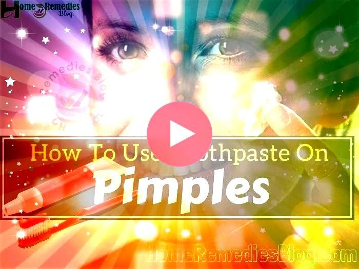 To Get Rid Of Acne Overnight  Find Out How To Remove Pimples Naturally Overnight Does Toothpaste Get Rid Of Pimples  Home Remedies For Pimples For Oily Skin  How To Get R...