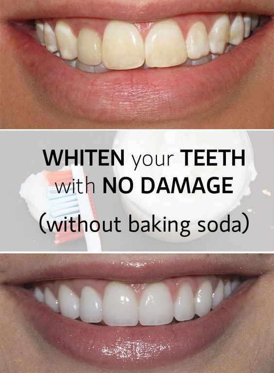 Whiten Teeth Fast And With No Damage Fashion Gifts Foods