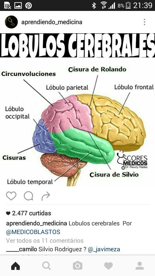 Lobulos cerebrales | Pensamientos | Pinterest | Lóbulos cerebrales ...