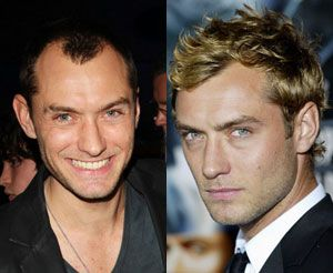 Epingle Sur Hair Loss Celebrity