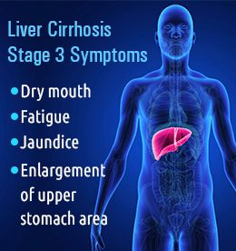 How Many Years Does It Take To Get Cirrhosis