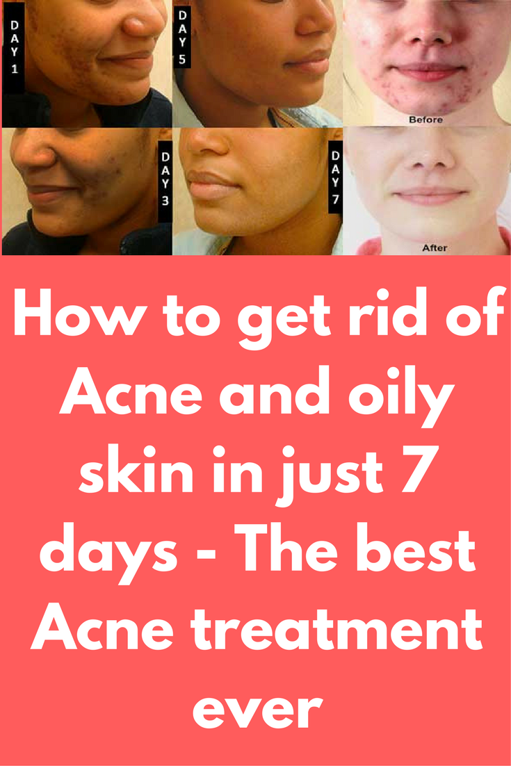 How to get rid of Acne and oily skin in just  days  The best Acne