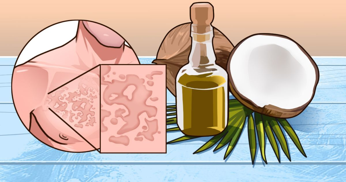Get rid of hives quickly with these 7+ home remedies ...