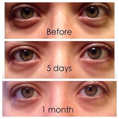Before/After pics from using #itworks eye/lip lifting cream. This product is getting great reviews and is seeing great results.   Come check me out on Facebook, like my page for your chance at free giveaways!! :) #EyebagsTreatment #ExfoliatingLipScrub #ClearLipGloss