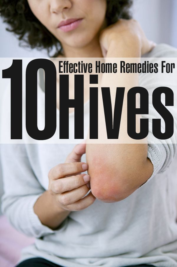 Effective Home Remedies For Hives 10 Effective Home Remedies For Hives - good article with ideas for things you most likely have in the kitchen or medicine cabinet.  I would add bentonite clay and apple cider vinegar to the list.10 Effective Home Remedies For Hives - good article with ideas for things you most likely have in the kitchen or medicine cabi...