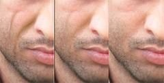 Facial Lipoatrophy is the loss of fat in the face causing
