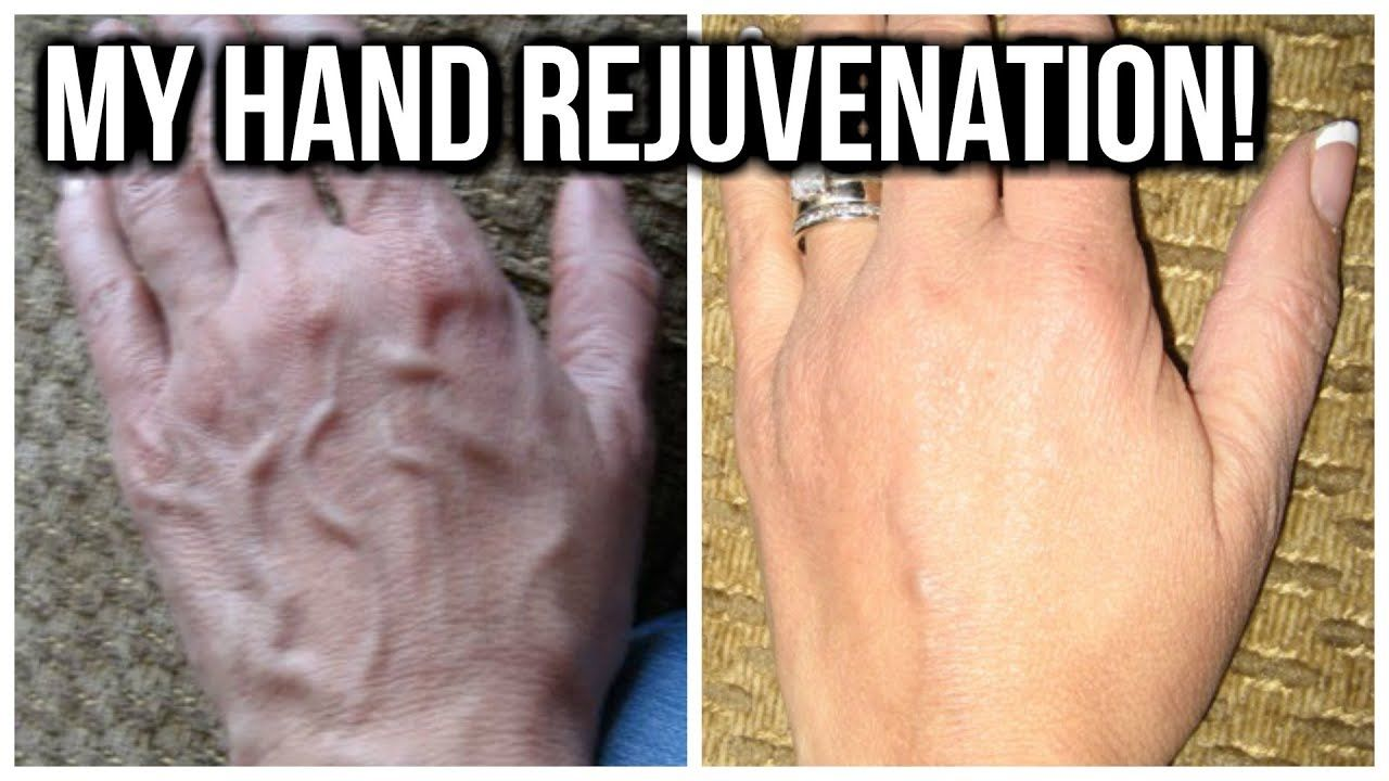 d762f06160fe55fcd38519caeef7fc2e - How To Get Rid Of Veins On Your Hands
